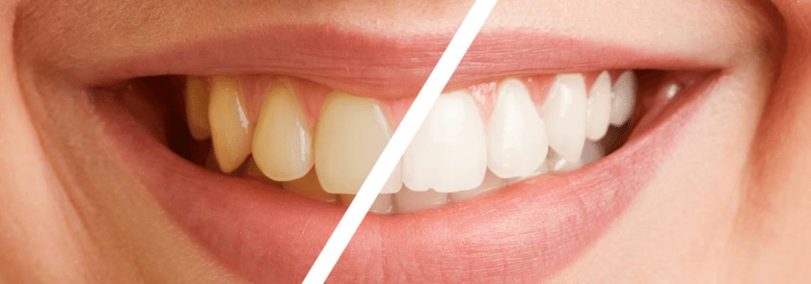 Diş Temizletme İşleminin Faydaları