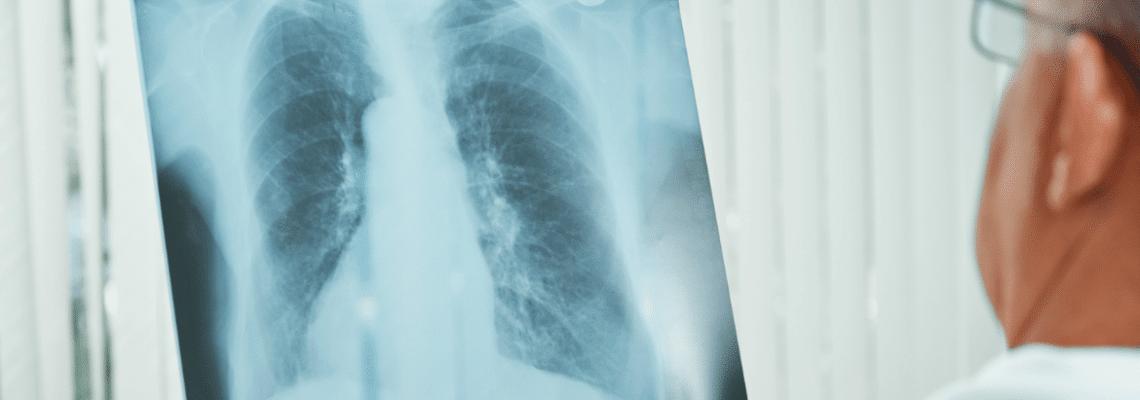 Tüberküloz (Verem Hastalığı) Nedir? Belirtileri ve Tedavisi