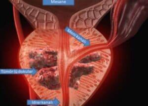 prostat kanseri görüntüleme